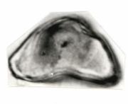 Serjania paucidentata